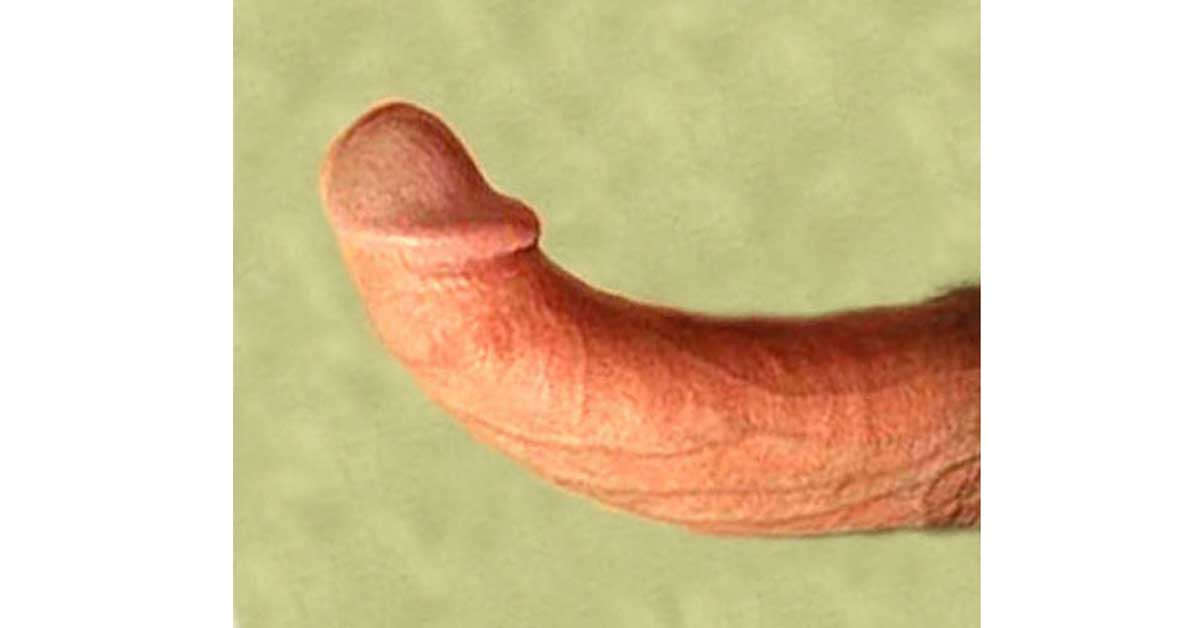 upward curved penis
