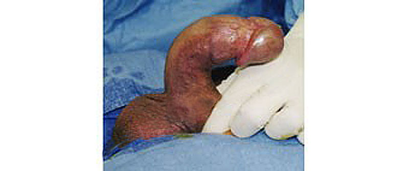 straighten a bent penis with collagenase?
