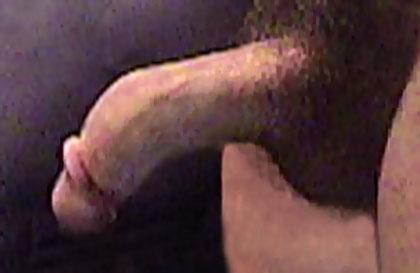 bent penis curved downward