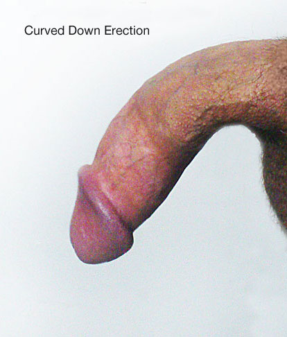 curved down penis