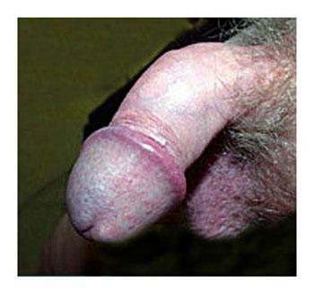 bent penis #2