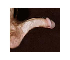 bent penis #10