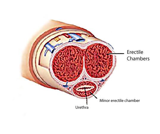 bent penis disease, the erectile chambers