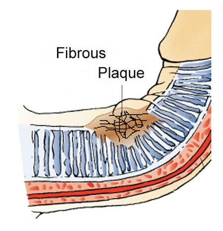 fibrous plaque