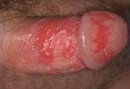 penis genital herpes, herpies
