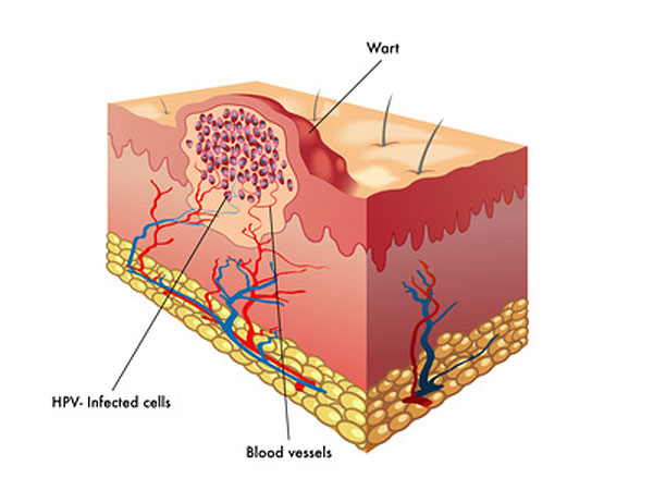 hpv warts diagram