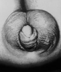 micro penis 2