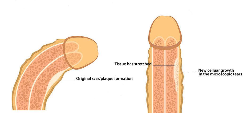 fix a bent penis naturally, without surgery