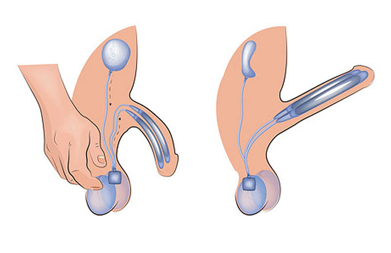 penile implant, erectile dysfunction, bent penis