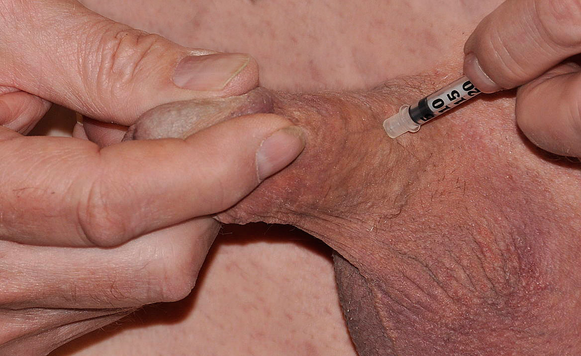 penis injections for a Peyronies disease bent penis