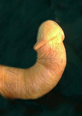 erectile dysfunction treatment for peyronies disease