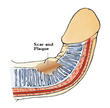 a deformed penis caused by peyronies disease scar and plaque tissue