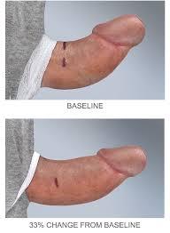 Xiaflex injections