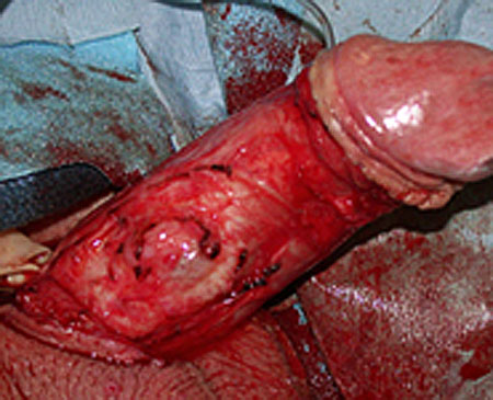 fix a broken penis with degloving