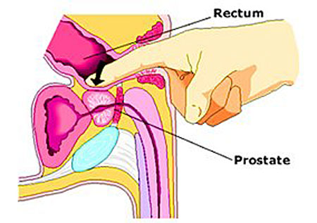 prostate massage for greater prostate health