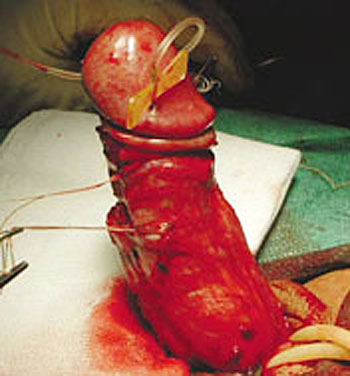 phalloplasty, penis surgery to straighten a bent penis
