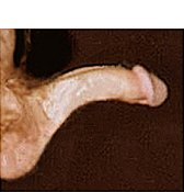 medium penis curve