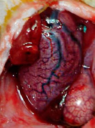 testicular torsion after 4 hours