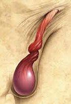 testicular torsion diagram