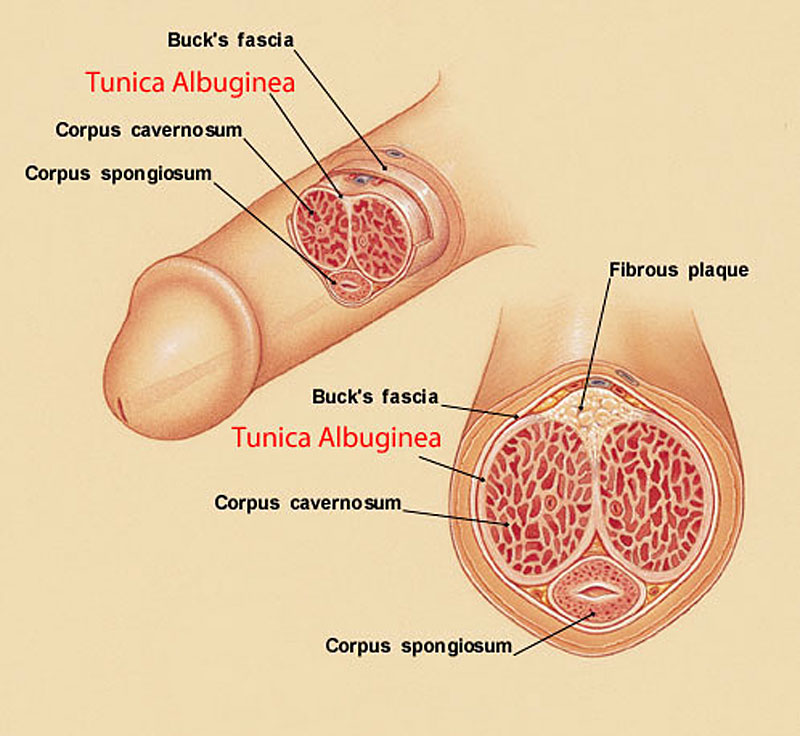 tunica albuginea and a bent penis caused by peyronies disease